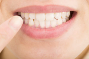 審美歯科治療とホワイトニング