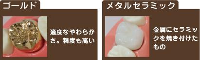 ゴールドと銀歯